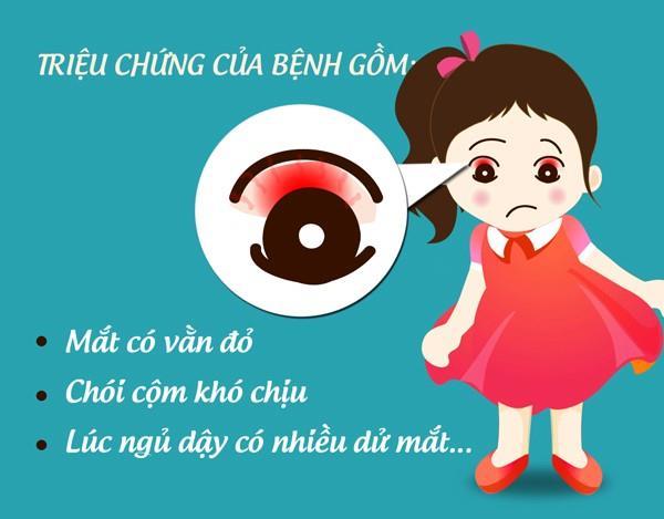 Khuyến cáo phòng chống bệnh đau mắt đỏ