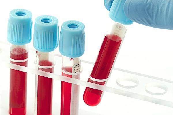 Ý nghĩa xét nghiệm Glucose