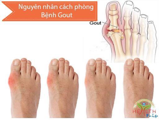 Bệnh gút (Gout), Nguyên nhân cách phòng Bệnh gout