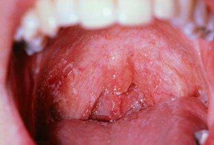 80% số ca viêm họng không nên dùng kháng sinh