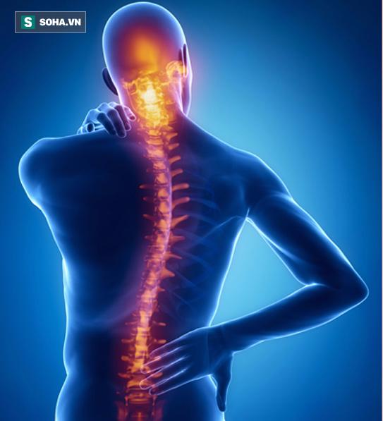 Bác sĩ hướng dẫn tập chữa mỏi lưng, đau cột sống: Người đau lâu ngày cũng khỏi nhanh chóng