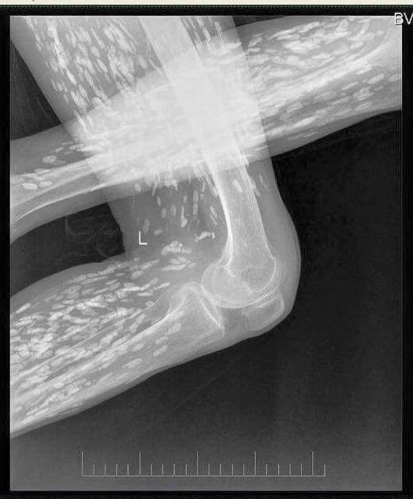 Rầm rộ bức ảnh chụp bằng X-quang của bệnh nhân nhiễm sán xơ mít