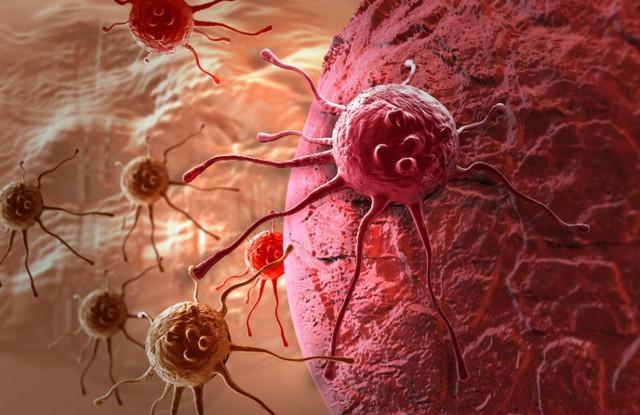 Hiểu biết đơn giản về ung thư